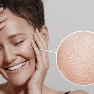 Zsíros bőr kezelése